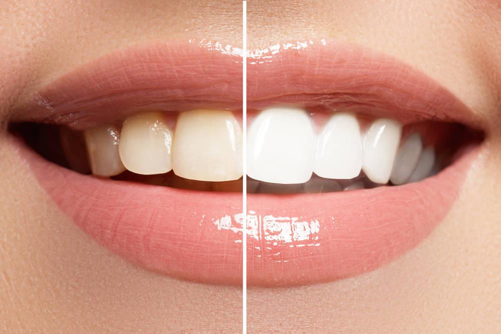 Los tres tratamientos de estética dental más demandados por los pacientes